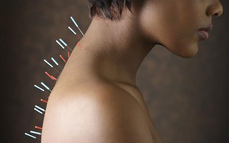 Needles = pain?! Nope. Acupuncture = treatment for chronic pain!